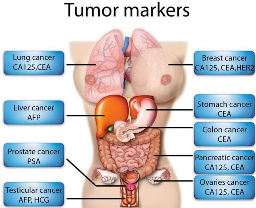 Should I Take A Cancer Marker Test Positive Bioscience