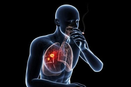 Lung Cancer Treatment in India Positive Bioscience