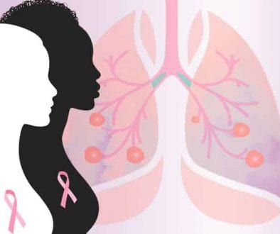 Are breast cancer and lung cancer related